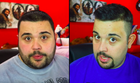 Prima e dopo l'operazione di Cicciogamer89